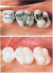 Comparison image of white fillings and amalgam fillings.