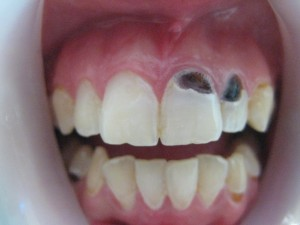 black spots on teeth