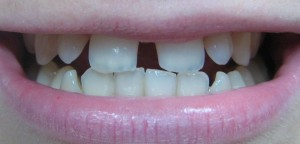 teeth front gap