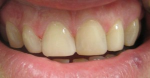 old fillings Repaired with composite resin in 1 hour